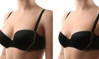 Breast enlargement and reduction call +256777422022